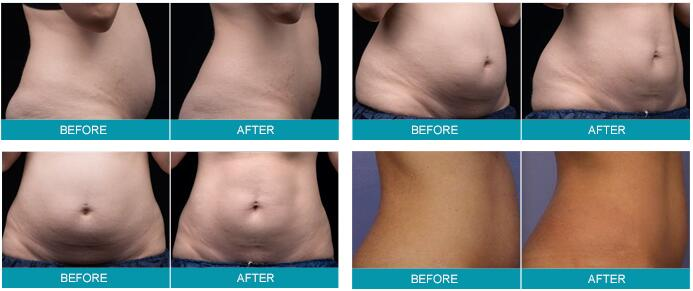 Before & After Liposoinx