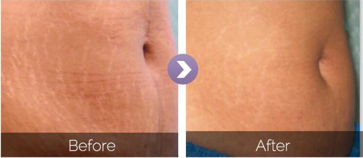 Before & After iShape II
