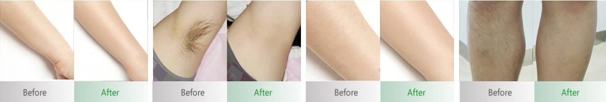 Before&After diode laser